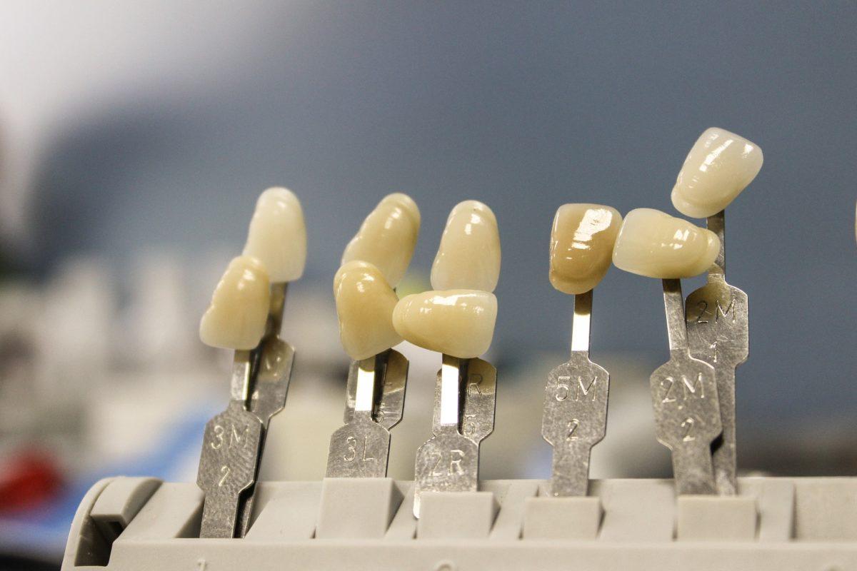 Ładne urodziwe zęby dodatkowo powalający cudny uśmiech to powód do dumy.