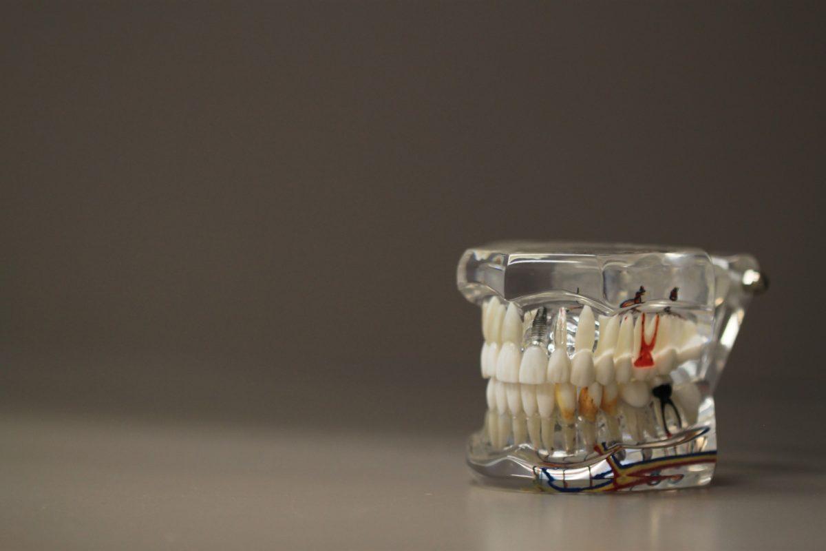 Zły sposób odżywiania się to większe niedostatki w jamie ustnej natomiast także ich utratę
